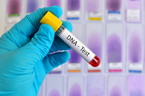 Cost of DNA Test in Nigeria (September 2021)