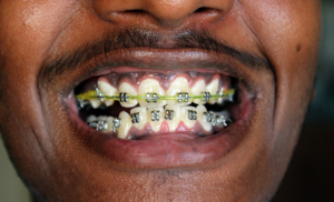 cost of dental braces in nigeria